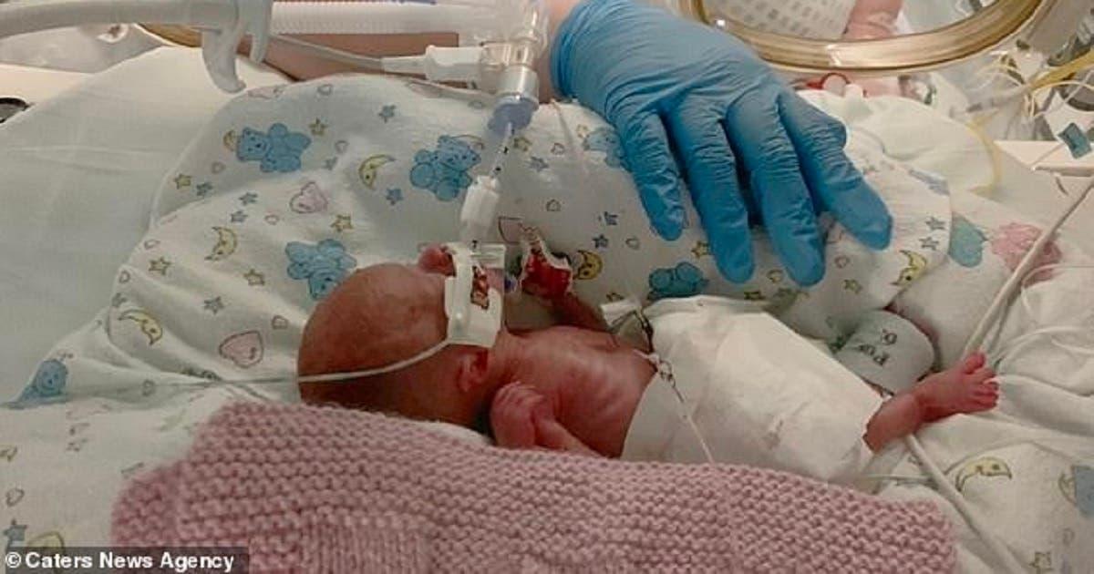 Bebê prematuro de 490 gramas é salvo com um saco plástico de sanduíche